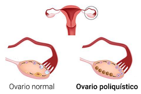 Resultado de imagen para Síndrome de Ovario Poliquístico